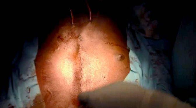 [Vidéo] Le bistouri de l'espoir : film inédit de la première chirurgie à cœur ouvert au Bénin